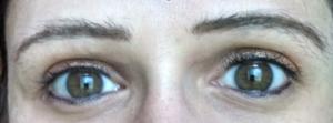 Eyelash pulling cure