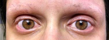 Heather\u2019s Successful Eyelash Pulling Treatment